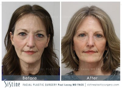 Restylane/ Juvederm Gallery - Patient 4891084 - Image 1