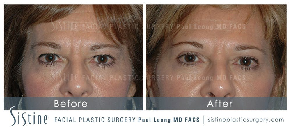 Restylane/ Juvederm Gallery - Patient 4891087 - Image 1