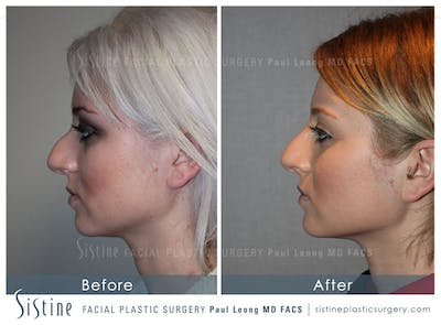 Restylane/ Juvederm Gallery - Patient 4891090 - Image 1