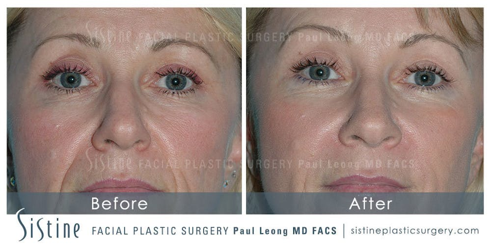 Restylane/ Juvederm Gallery - Patient 4891147 - Image 1