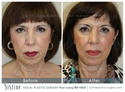 Restylane/ Juvederm Gallery - Patient 4891333 - Image 1