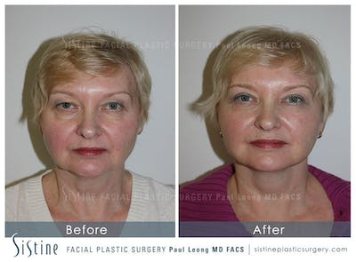 Restylane/ Juvederm Gallery - Patient 4891335 - Image 1