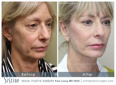 Restylane/ Juvederm Gallery - Patient 4891338 - Image 1