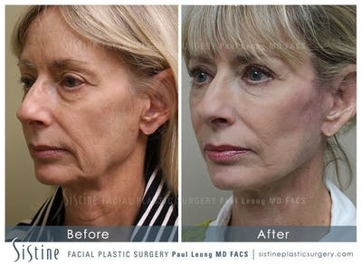 Restylane/ Juvederm Gallery - Patient 4891338 - Image 2