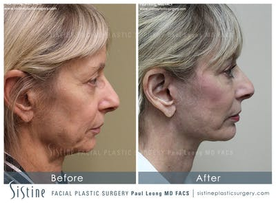 Restylane/ Juvederm Gallery - Patient 4891338 - Image 4