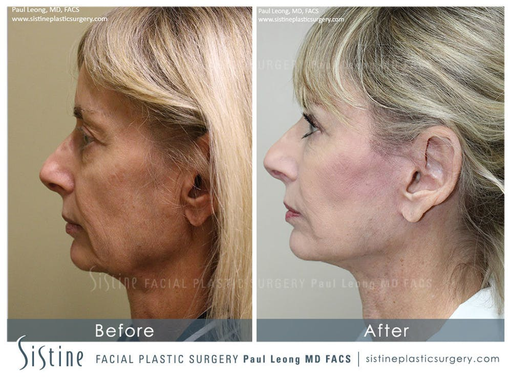 Restylane/ Juvederm Gallery - Patient 4891338 - Image 5