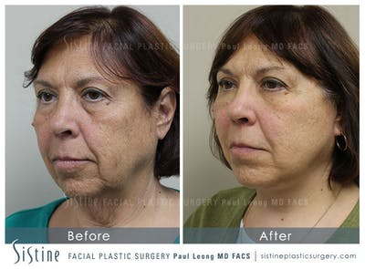 Restylane/ Juvederm Gallery - Patient 4891341 - Image 1