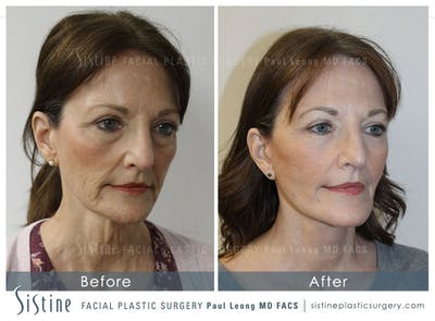 Restylane/ Juvederm Gallery - Patient 4891343 - Image 2