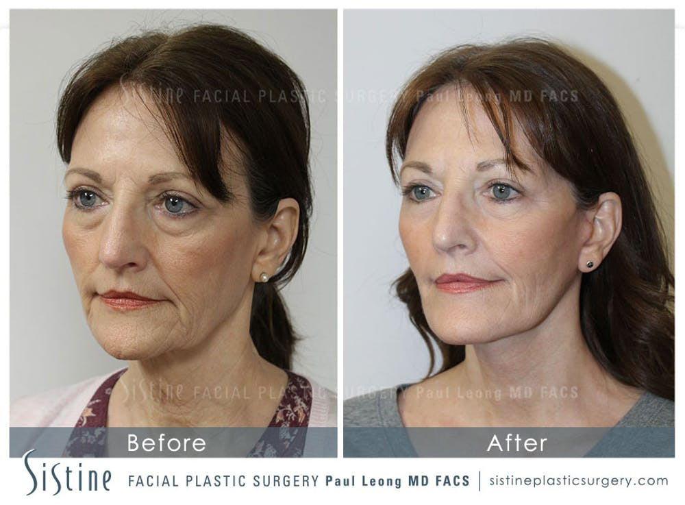 Restylane/ Juvederm Gallery - Patient 4891343 - Image 3