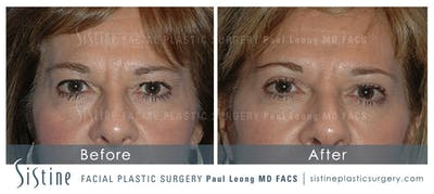 Restylane/ Juvederm Gallery - Patient 4891345 - Image 1