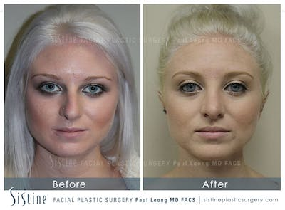 Restylane/ Juvederm Gallery - Patient 4891350 - Image 1