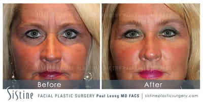 Restylane/ Juvederm Gallery - Patient 4891351 - Image 1