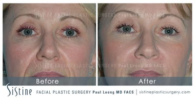 Restylane/ Juvederm Gallery - Patient 4891352 - Image 1