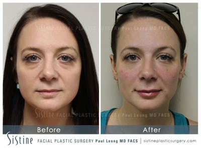 Restylane/ Juvederm Gallery - Patient 4891354 - Image 1