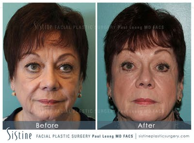 Restylane/ Juvederm Gallery - Patient 4891360 - Image 1