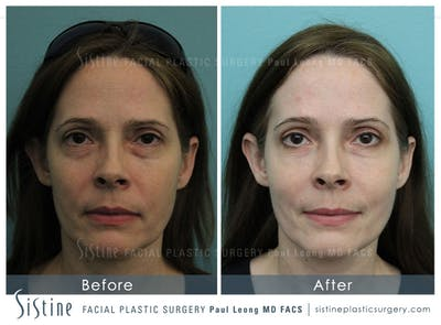 Restylane/ Juvederm Gallery - Patient 4891361 - Image 1