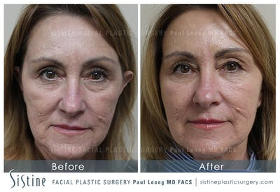 Restylane/ Juvederm Gallery - Patient 4891362 - Image 1