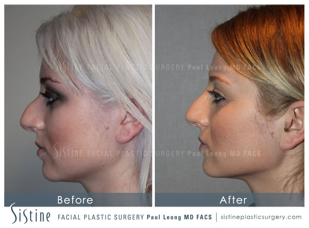 Restylane/ Juvederm Gallery - Patient 4891375 - Image 1