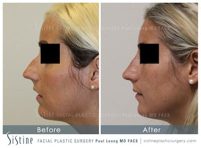 Restylane/ Juvederm Gallery - Patient 4891399 - Image 1