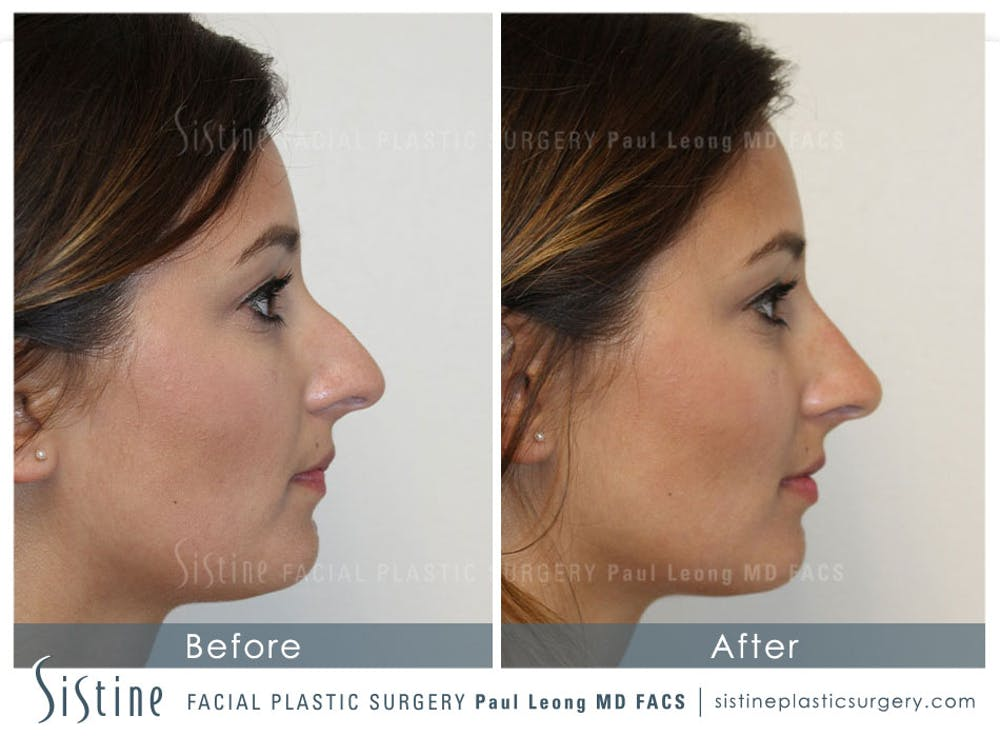 Restylane/ Juvederm Gallery - Patient 4891402 - Image 1