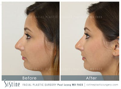 Restylane/ Juvederm Gallery - Patient 4891402 - Image 2