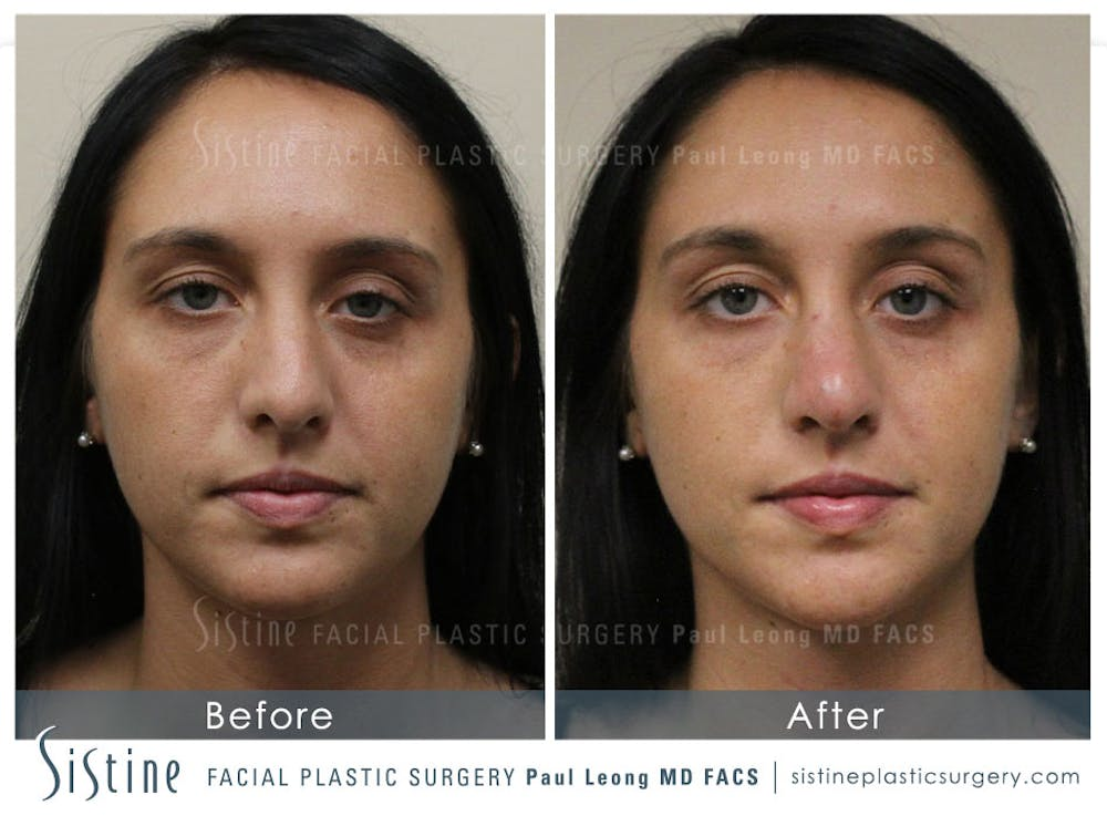 Restylane/ Juvederm Gallery - Patient 4891408 - Image 1