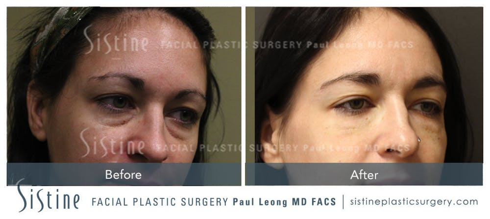 Restylane/ Juvederm Gallery - Patient 4891411 - Image 1