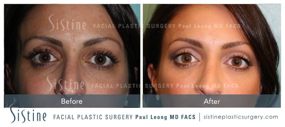 Restylane/ Juvederm Gallery - Patient 4891413 - Image 1