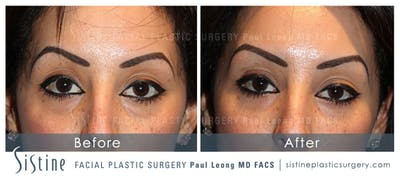 Restylane/ Juvederm Gallery - Patient 4891421 - Image 1