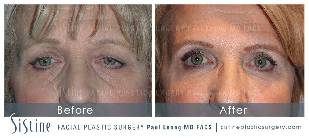 Restylane/ Juvederm Gallery - Patient 4891425 - Image 1