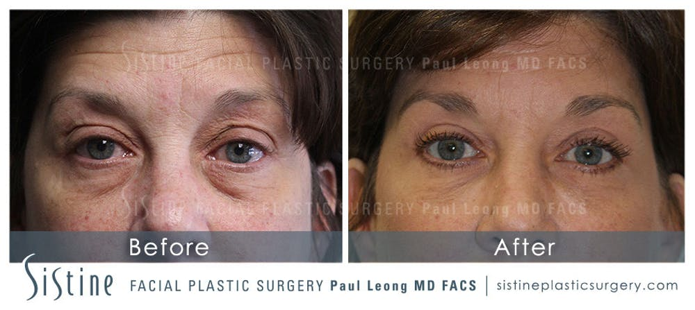 Restylane/ Juvederm Gallery - Patient 4891427 - Image 1