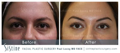 Restylane/ Juvederm Gallery - Patient 4891429 - Image 1