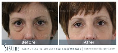 Restylane/ Juvederm Gallery - Patient 4891430 - Image 1