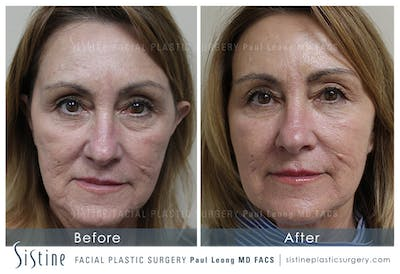 Restylane/ Juvederm Gallery - Patient 4891431 - Image 1