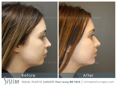 Restylane/ Juvederm Gallery - Patient 4891355 - Image 1