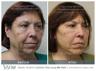 Restylane/ Juvederm Gallery - Patient 4891470 - Image 1