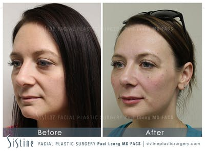 Restylane/ Juvederm Gallery - Patient 4891471 - Image 1