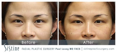 Restylane/ Juvederm Gallery - Patient 4891473 - Image 1