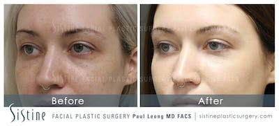 Restylane/ Juvederm Gallery - Patient 4891474 - Image 1