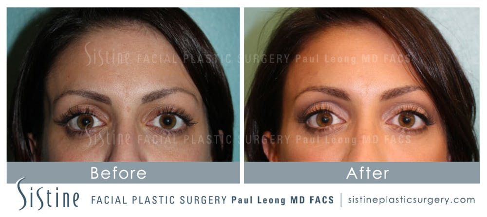 Restylane/ Juvederm Gallery - Patient 4891475 - Image 1