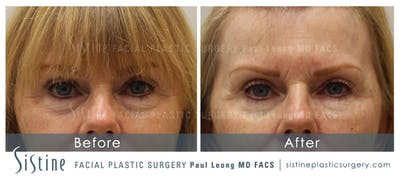 Restylane/ Juvederm Gallery - Patient 4891476 - Image 1