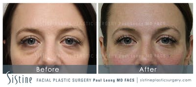 Restylane/ Juvederm Gallery - Patient 4891478 - Image 1