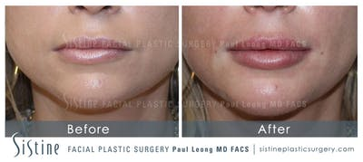 Restylane/ Juvederm Gallery - Patient 4891479 - Image 1