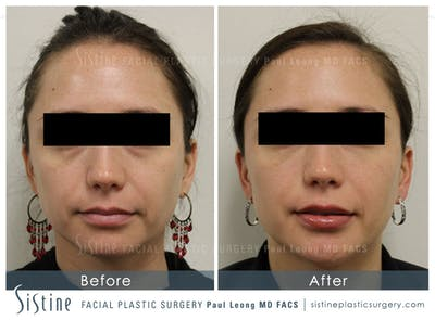 Restylane/ Juvederm Gallery - Patient 4891480 - Image 1