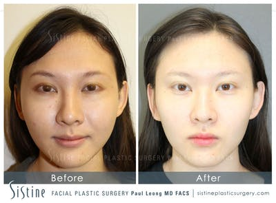 Restylane/ Juvederm Gallery - Patient 4891481 - Image 1