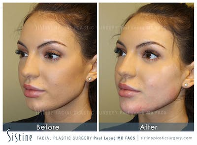 Restylane/ Juvederm Gallery - Patient 4891482 - Image 1