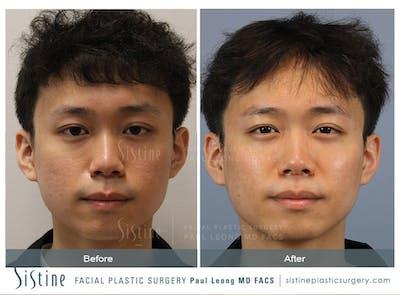 SkinPen Microneedling Gallery - Patient 62594794 - Image 1