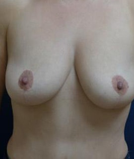 Breast Augmentation Gallery - Patient 4861023 - Image 1