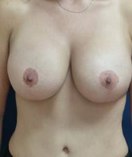 Breast Augmentation Gallery - Patient 4861023 - Image 2
