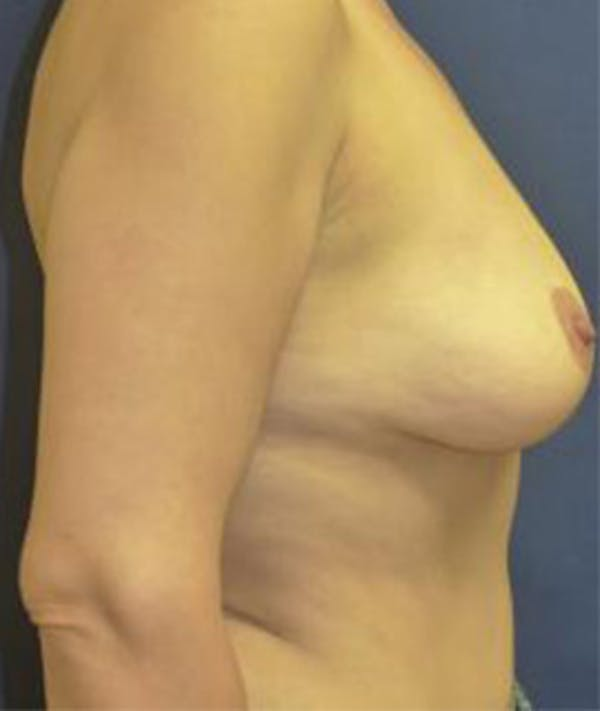 Breast Augmentation Gallery - Patient 4861023 - Image 3